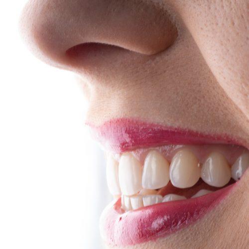 5 formas de manter os seus dentes brancos