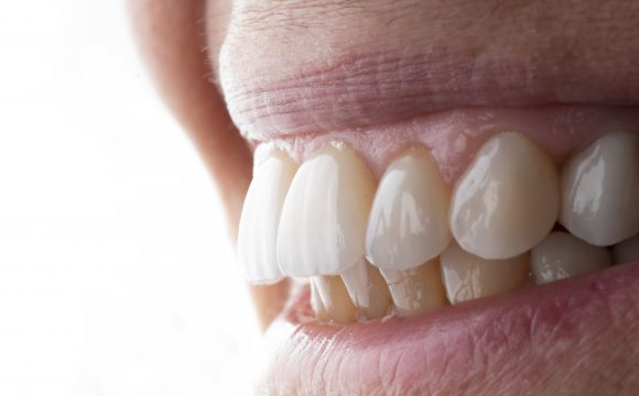 Facetas dentárias, as 6 coisas que precisa de saber!