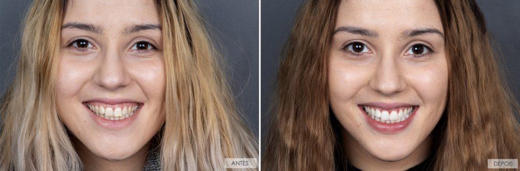 branqueamento-dentes-antes-depois