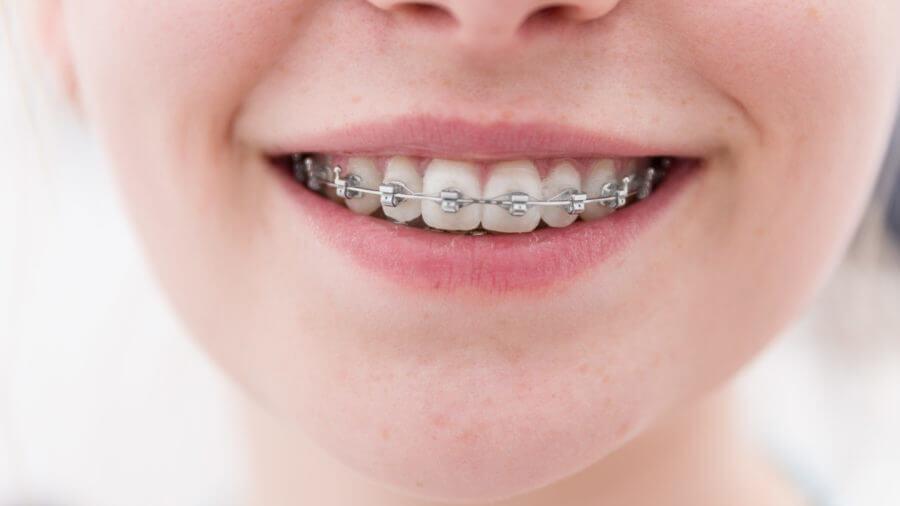 Ortodontia-Aparelho-autoligavel