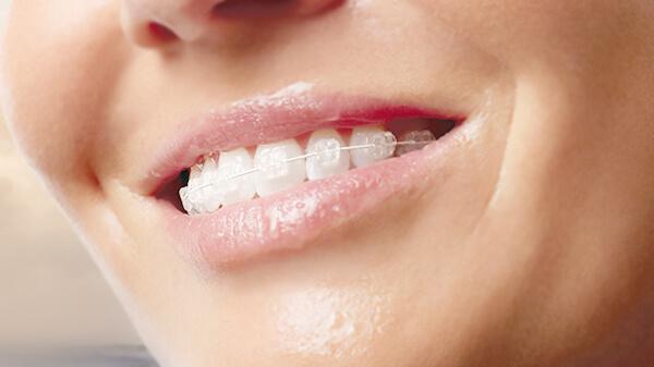 Ortodontia-Aparelho-estético-de-safira