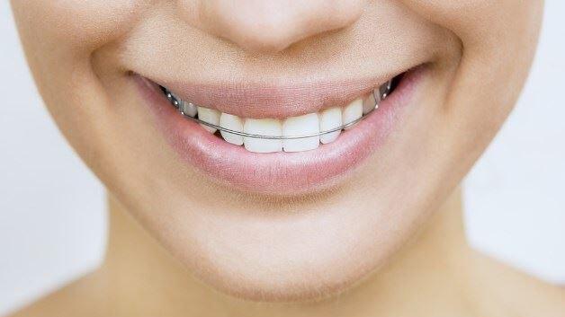 Ortodontia-Aparelho-removível