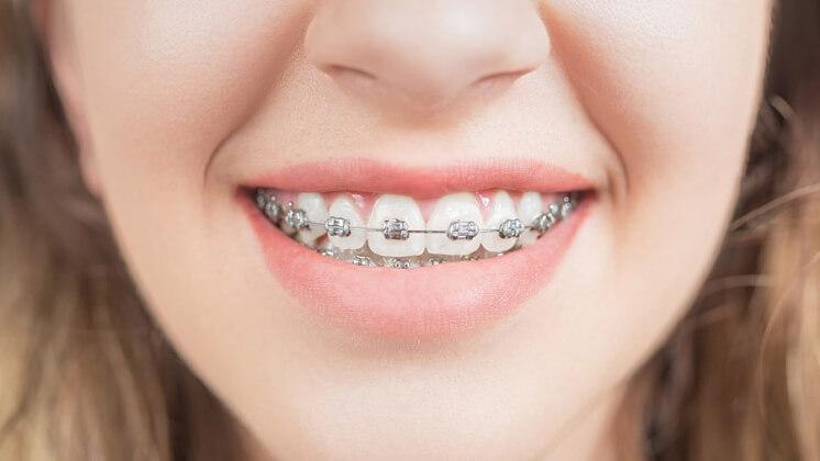 ortodontia-aparelho-metálico-convencional
